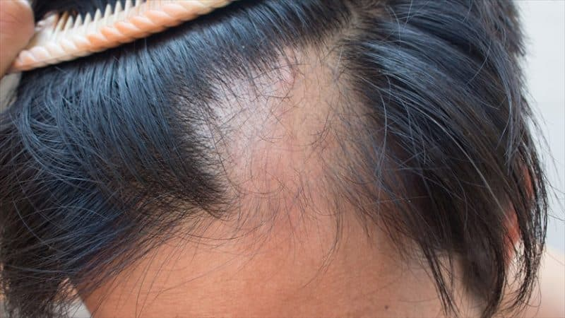 Łysienie - ciemne włosy