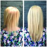 choroby włosów i peruki