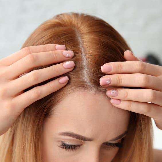 przyczyny łysienia